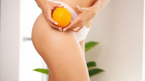 Cómo eliminar la celulitis en las piernas y glúteos