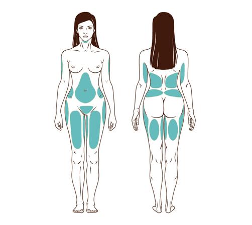 cuerpos zonas Liposucción con Lipoláser