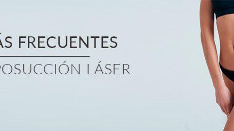 Las dudas más frecuentes sobre la liposucción láser