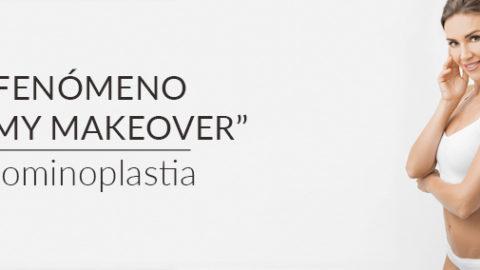"""El fenómeno """"mommy makeover"""": Abdominoplastia"""