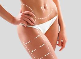 flacidez corporal1 Medicina Estética Corporal