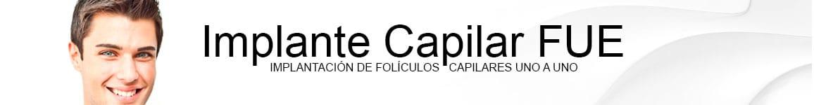 ALOPECIA Y CAÍDA DEL CABELLO: IMPLANTE CAPILAR