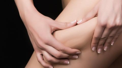 Si quieres hacerte una liposucción,  pero tienes dudas y no te atreves a dar el paso:  Descubre las respuestas a las preguntas más frecuentes de nuestros pacientes
