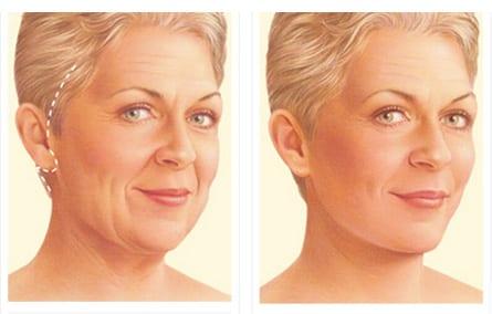 Cirugia Mentón o Pómulos