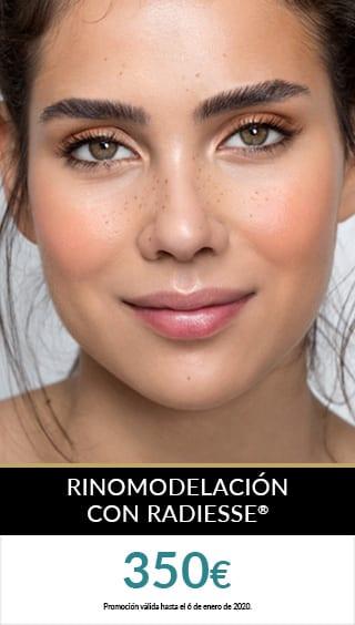 rinomodelacion radiesse promo zurich diciembre PROMOS