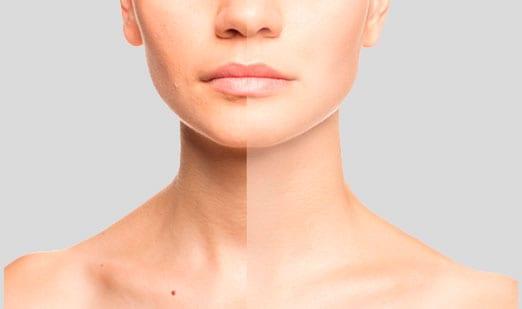 subhome rejuvenecimiento peeling facial Rejuvenecimiento