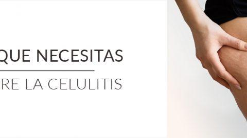 Todo lo que necesitas saber sobre la celulitis