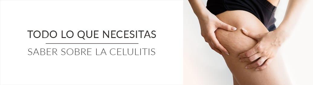todo sobre la celulitis
